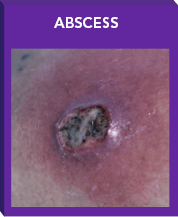 ABSSSI Patient With Abscess on Lower Back.