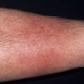 ABSSSI Patient With Cellulitis/Erysipelas Infection Site on the Arm.