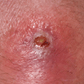 ABSSSI Patient With Cutaneous Abscess Skin Abrasion.