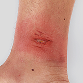 Patient With ABSSSI, Cellulitis From a Skin Abrasion on the Ankle